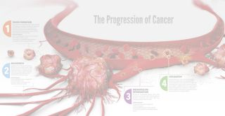 The Progression of Cancer Poster | Corning | Request