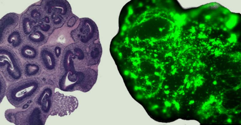An image of the 'normal' and 'glioma' cerebral organoids Image © finelab.weill.cornell.edu